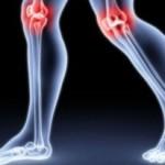 przyczyny reumatyzmu